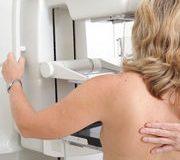 Dépistage du cancer du sein – Une campagne trompeuse